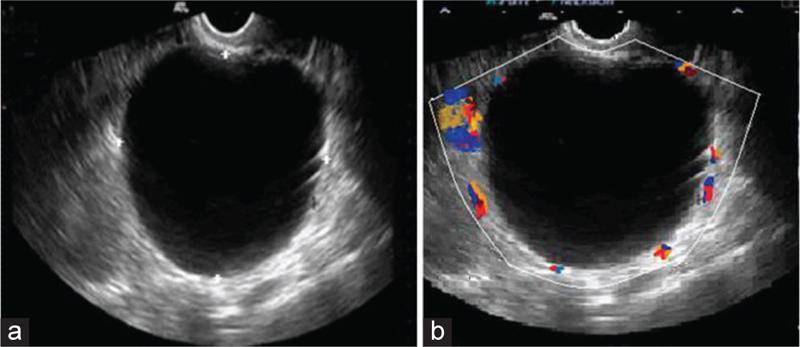 Imaging modalities in the differentiation of various adnexal